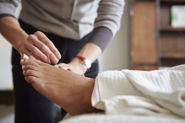 Foot-Acupuncture-Dove-Therapies